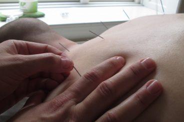 Sportszoneterapi og Sportsakupunktur